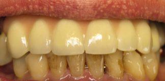 ни разу не был у стоматолога