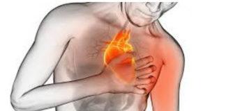 как выжить после сердечного приступа