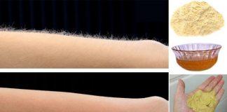 как избавиться от волос