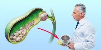 Лечение желчного пузыря без операции
